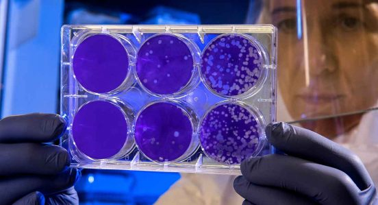 estudiar-bacteriologia